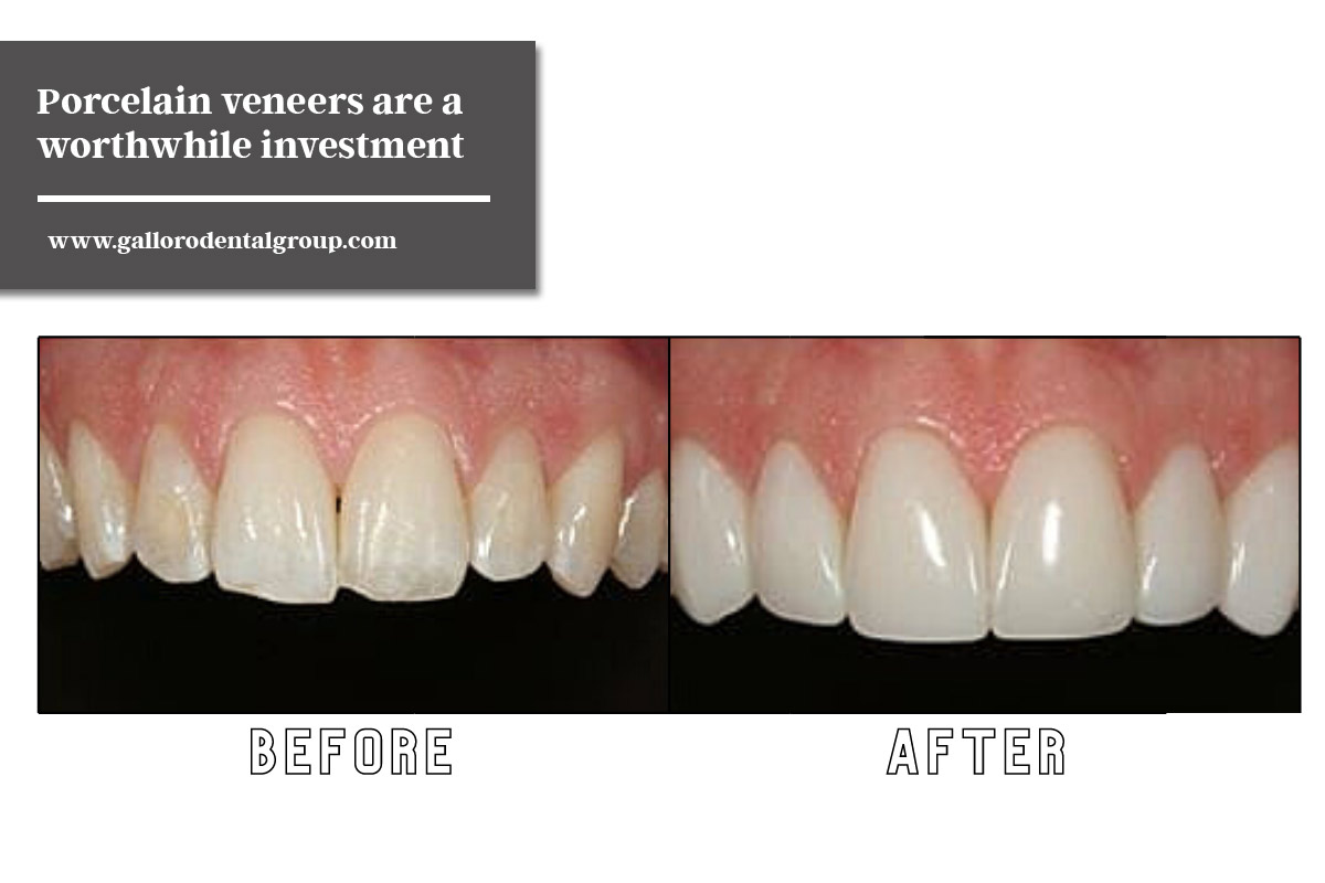 Porcelain veneers are a worthwhile investment