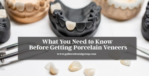 What-You-Need-to-Know-Before-Getting-Porcelain-Veneers