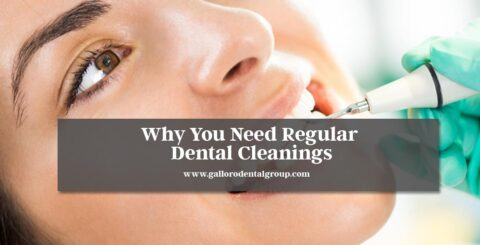Why-You-Need-Regular-Dental-Cleanings